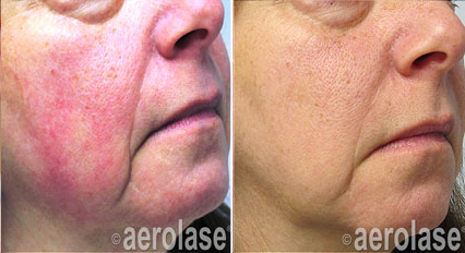Removing facial redness apologise